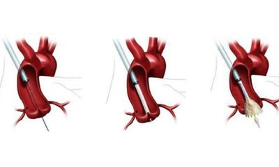 TAVR Surpasses SAVR in US, Outcomes Continue to Improve