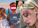 Belgian model shares images showing relationship changing from perfect to 'violent attacks'
