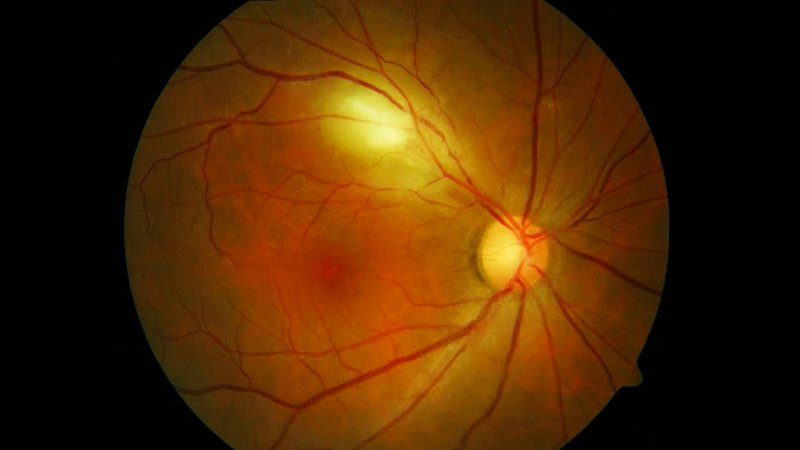 Blood Vessels in the Eye May Diagnose Parkinson's Disease