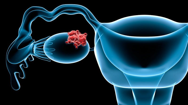 A Guide to the New Agents Reshaping Ovarian Cancer Treatment