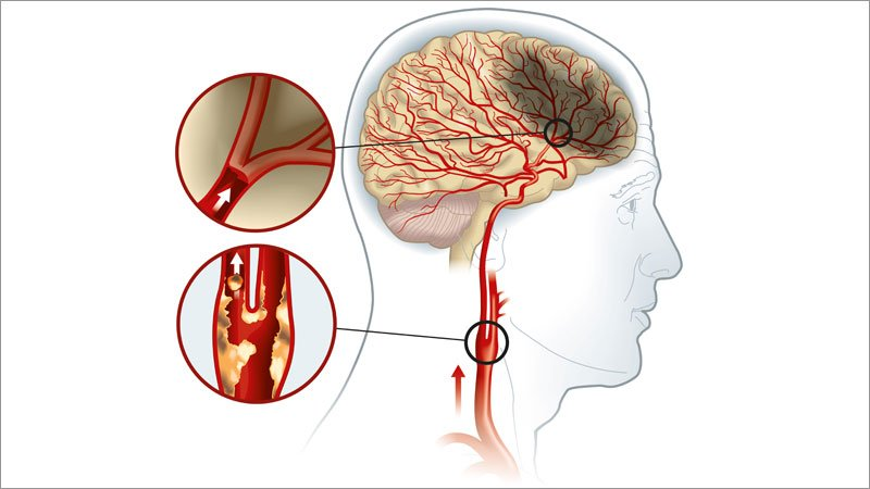 Small Complicated Carotid Plaques May Be Culprit in Some Strokes