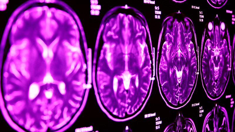 More, Larger Brain Lesions on MRI After Bicuspid TAVR