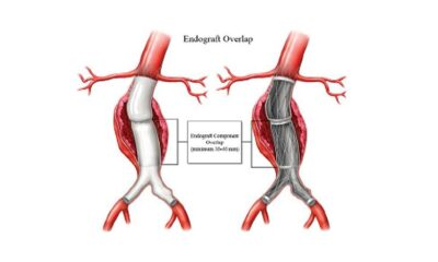 FDA Issues Updated Safety Alert for Endologix AAA Repair Grafts