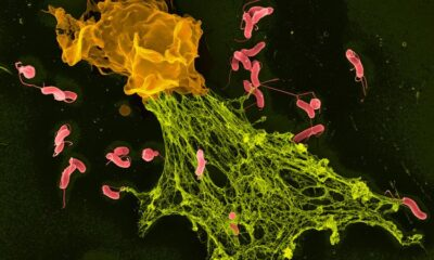 NETs a Possible Therapeutic Target for COVID-19 Thrombosis?