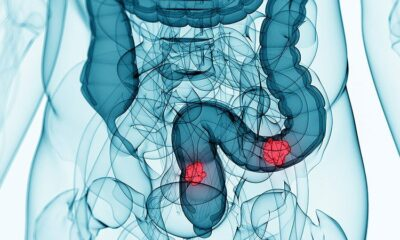 Triplet Shows 'Promising' Activity in Unresectable/Metastatic CRC