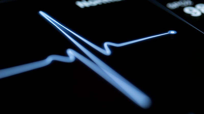 Cardiac Activity Not Uncommon After Lifesaving Measures Stop