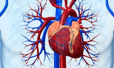 Hispanic People at Risk for Heart Disease Going Untreated