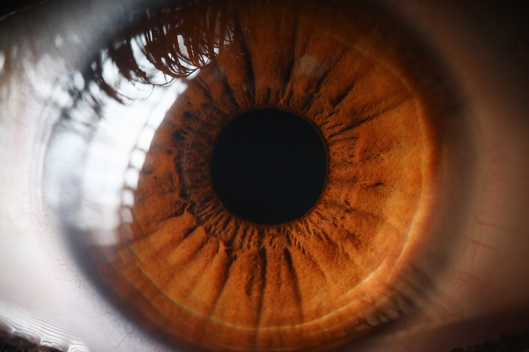 Your Eyes May Signal Your Risk for Stroke, Dementia