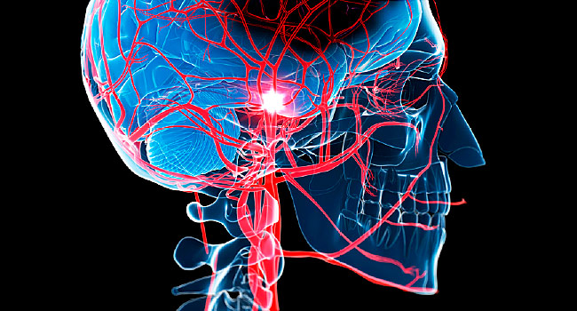 COVID Patients Face Higher Risk for Stroke