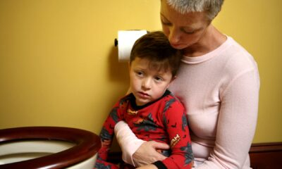 Clues to Rare Disorder Affecting Kids With COVID-19