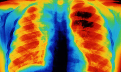Americans' Lung Health: The Poor Suffer Most