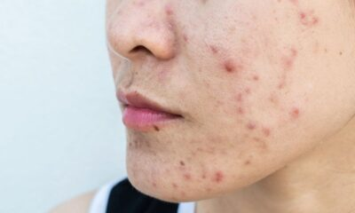 Study Highlights Effect of Acne in Adult Women on Quality of Life