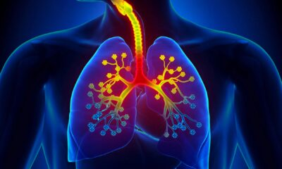 High Viral Load in Lungs Drives Fatal COVID-19