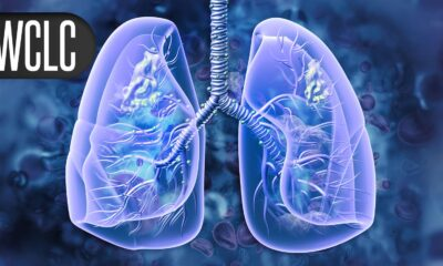 Immuno-Oncology Combo Active in Recurrent EGFR/ALK Positive NSCLC