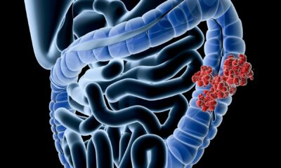 Having a Cousin or Grandparent With Colon Cancer Raises Your Risk