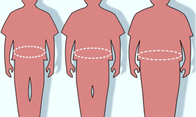 Researchers Discover 17 New Genes that Promote or Prevent Obesity