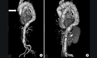 Low Rate of Follow-up Imaging After Aortic Dissection Repair